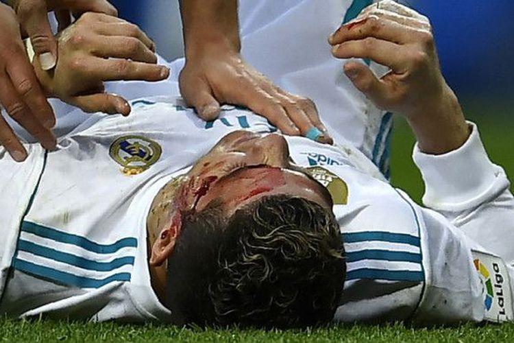 Cristiano Ronaldo Cetak 2 Gol Hingga Darah Bercucuran